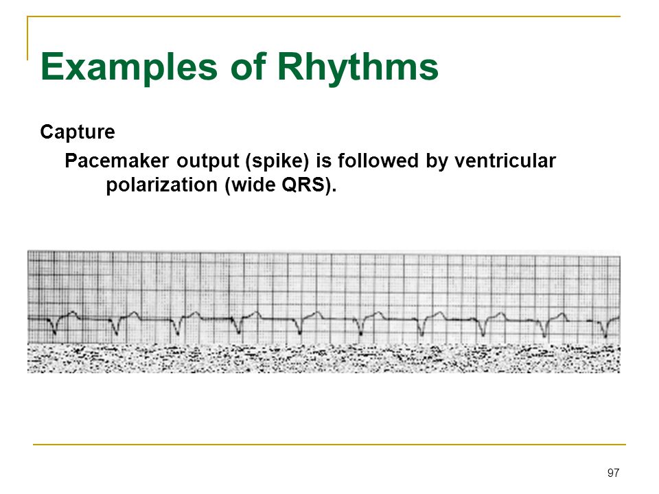 97 Examples of Rhythms Capture Pacemaker output (spike) is followed by ventricular polarization (wide QRS).