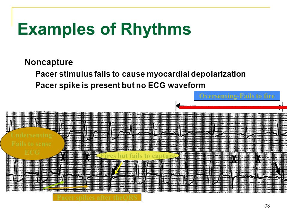 98 Examples of Rhythms Noncapture Pacer stimulus fails to cause myocardial depolarization Pacer spike is present but no ECG waveform Fires but fails t