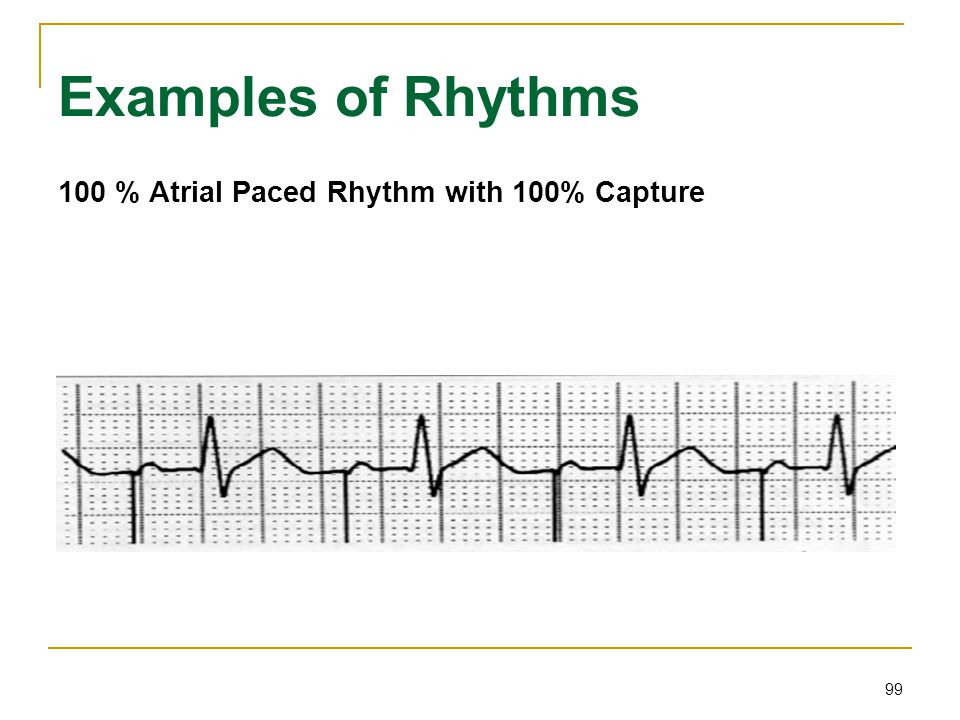 99 Examples of Rhythms 100 % Atrial Paced Rhythm with 100% Capture