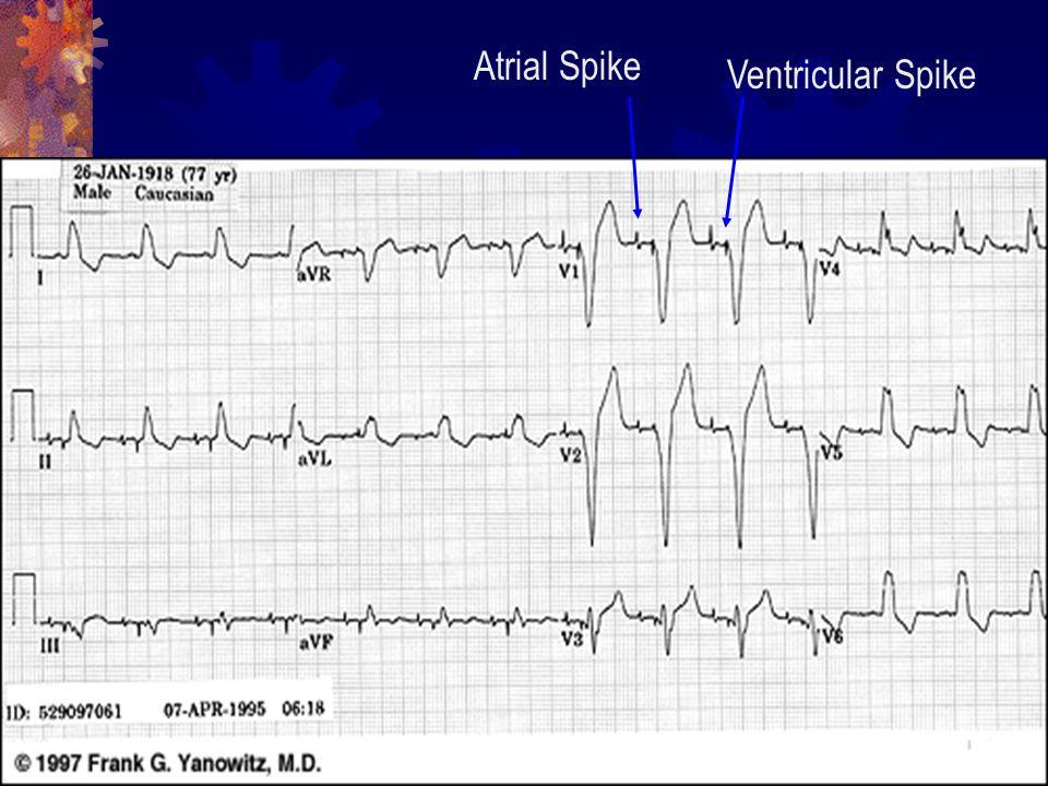 Atrial Spike Ventricular Spike