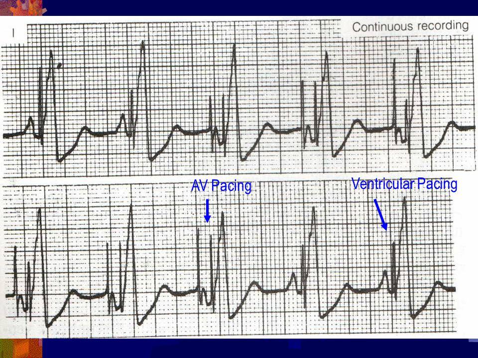 AV Pacing Ventricular Pacing