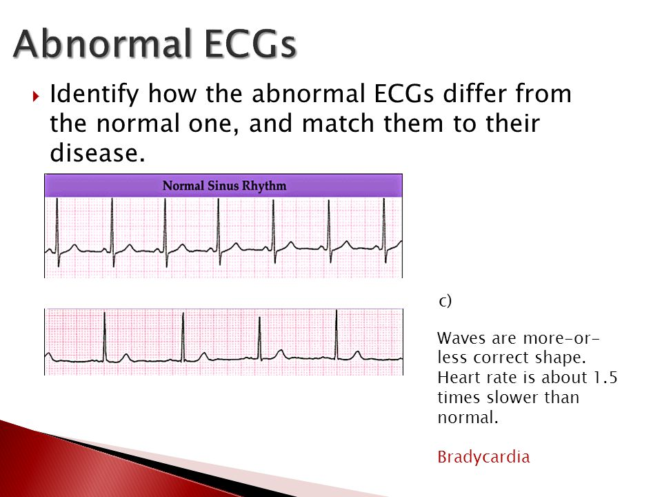  Identify how the abnormal ECGs differ from the normal one, and match them to their disease. c) Waves are more-or- less correct shape. Heart rate is