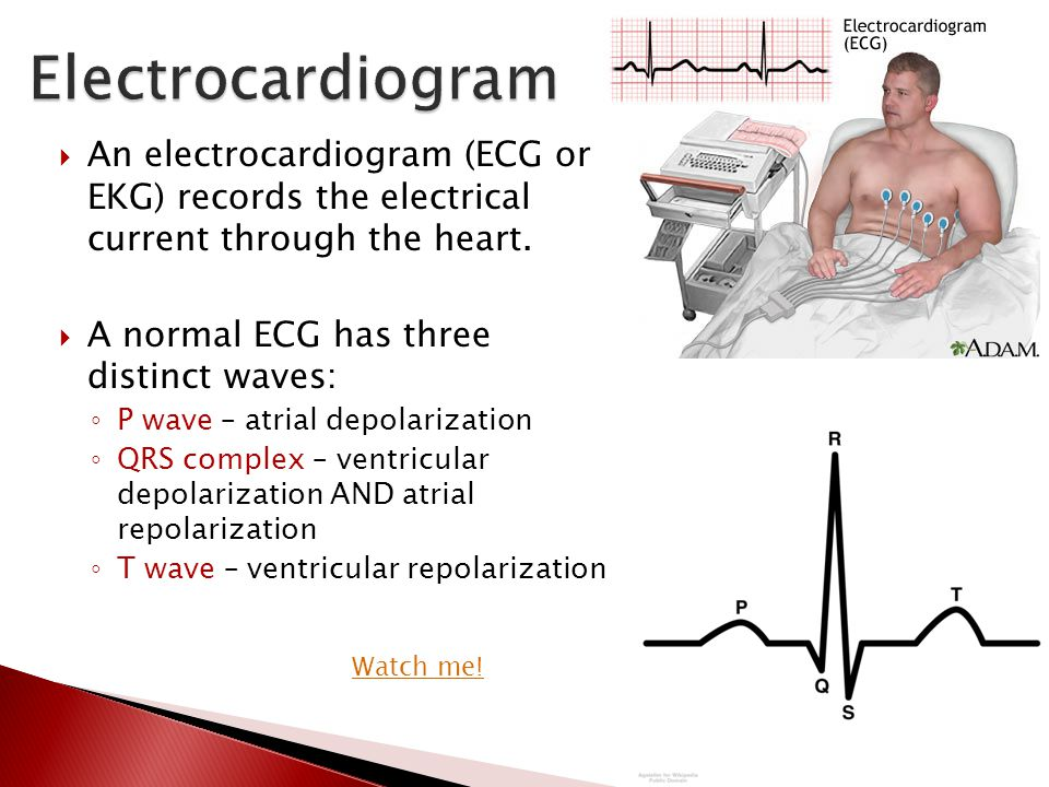  An electrocardiogram (ECG or EKG) records the electrical current through the heart.  A normal ECG has three distinct waves: ◦ P wave – atrial depol