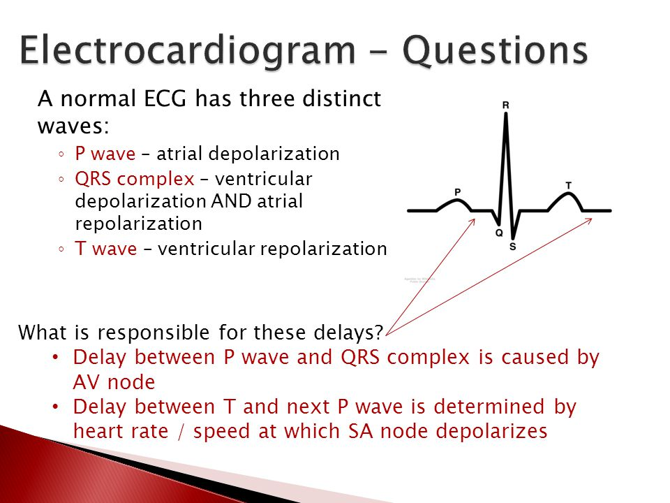 A normal ECG has three distinct waves: ◦ P wave – atrial depolarization ◦ QRS complex – ventricular depolarization AND atrial repolarization ◦ T wave