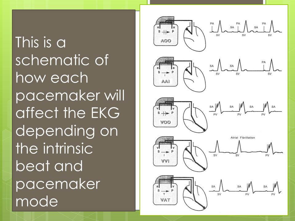 This is a schematic of how each pacemaker will affect the EKG depending on the intrinsic beat and pacemaker mode