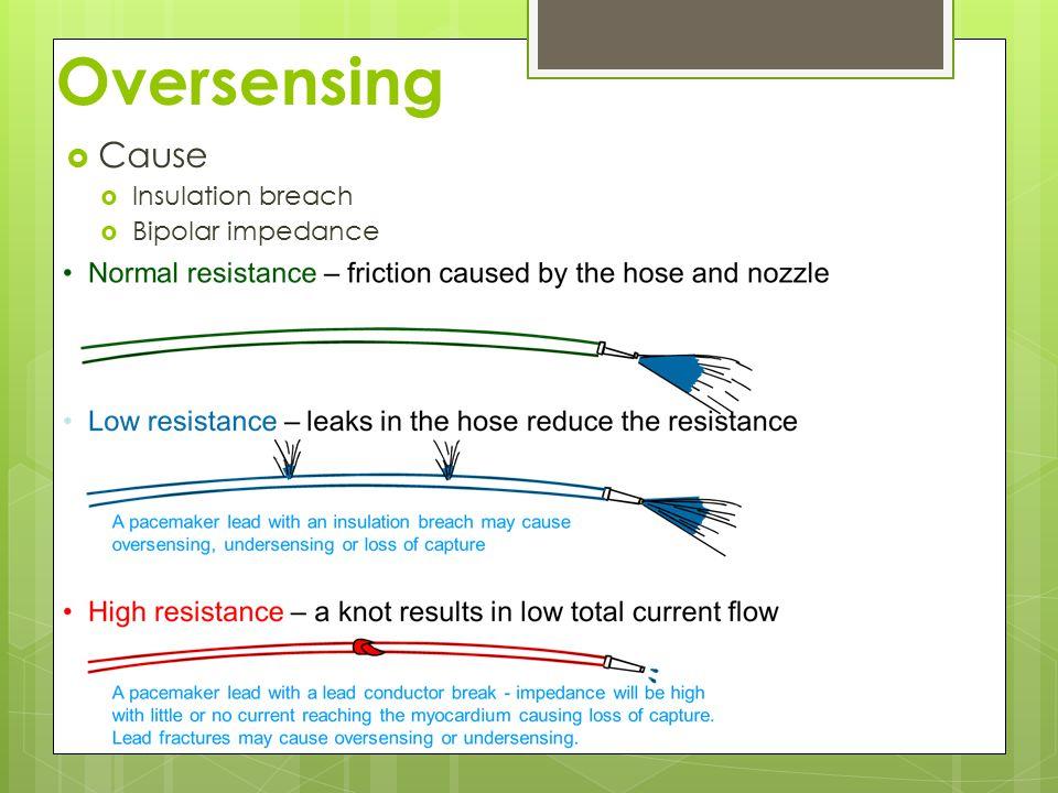 Oversensing  Cause  Insulation breach  Bipolar impedance