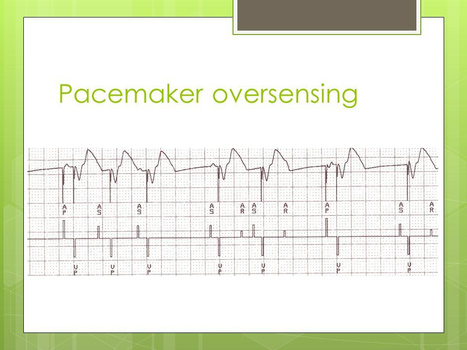 Pacemaker oversensing