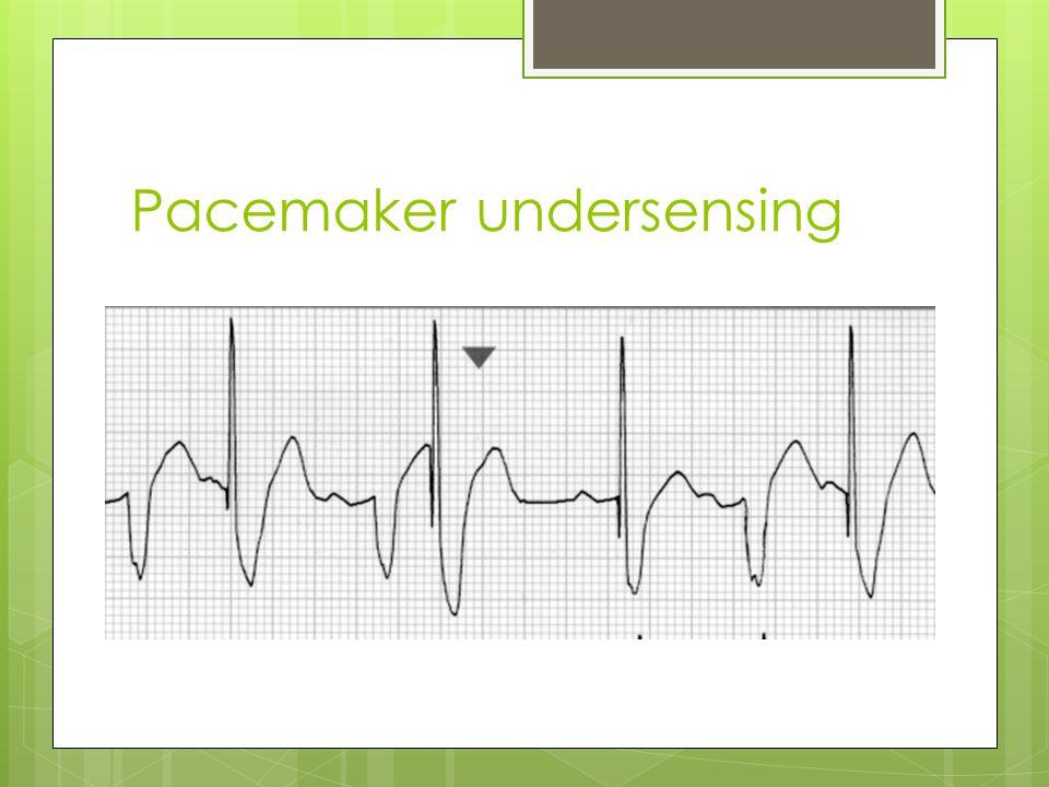 Pacemaker undersensing