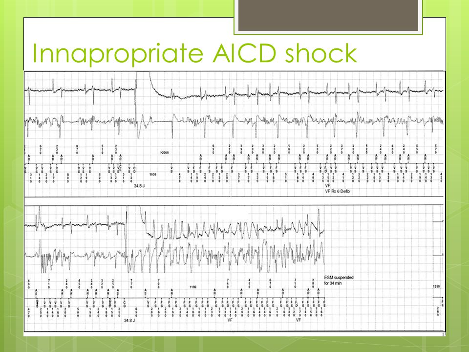 Innapropriate AICD shock