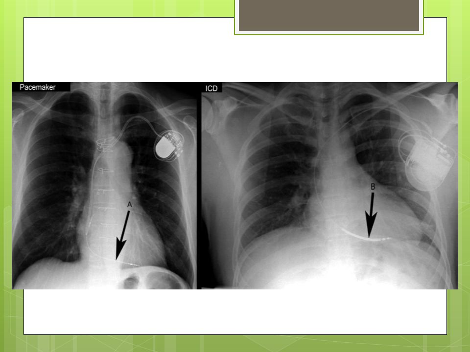 Emergency recommendations  Identify the type of device  Determine if the patient is pacing  Pacemaker dependent — Yes: pacemaker (not ICD) — Yes: ICD and pacemaker — No: pacemaker (not ICD) — No: ICD and pacemaker  What if I need a central line