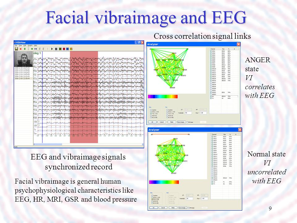 9 Facial vibraimage and EEG EEG and vibraimage signals synchronized record Cross correlation signal links ANGER state VI correlates with EEG Normal st