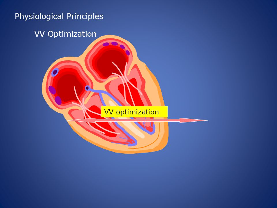 VV optimization Physiological Principles VV Optimization