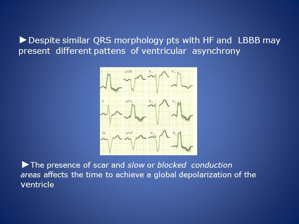► Despite similar QRS morphology pts with HF and LBBB may present different pattens of ventricular asynchrony ► The presence of scar and slow or blocked conduction areas affects the time to achieve a global depolarization of the ve ntricle