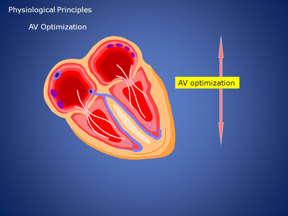 AV optimization Physiological Principles AV Optimization