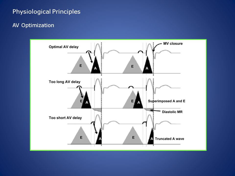 Physiological Principles AV Optimization