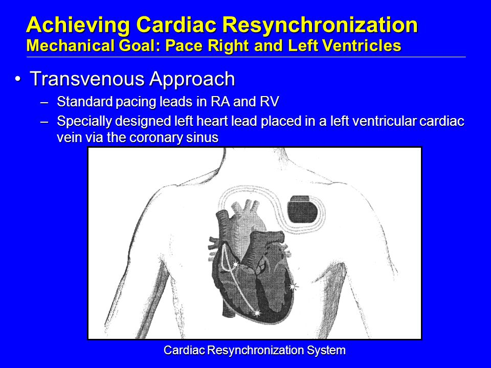 Transvenous ApproachTransvenous Approach –Standard pacing leads in RA and RV –Specially designed left heart lead placed in a left ventricular cardiac vein via the coronary sinus Achieving Cardiac Resynchronization Mechanical Goal: Pace Right and Left Ventricles Cardiac Resynchronization System