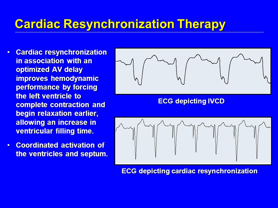 Cardiac Resynchronization Therapy Cardiac resynchronization in association with an optimized AV delay improves hemodynamic performance by forcing the left ventricle to complete contraction and begin relaxation earlier, allowing an increase in ventricular filling time.Cardiac resynchronization in association with an optimized AV delay improves hemodynamic performance by forcing the left ventricle to complete contraction and begin relaxation earlier, allowing an increase in ventricular filling time.