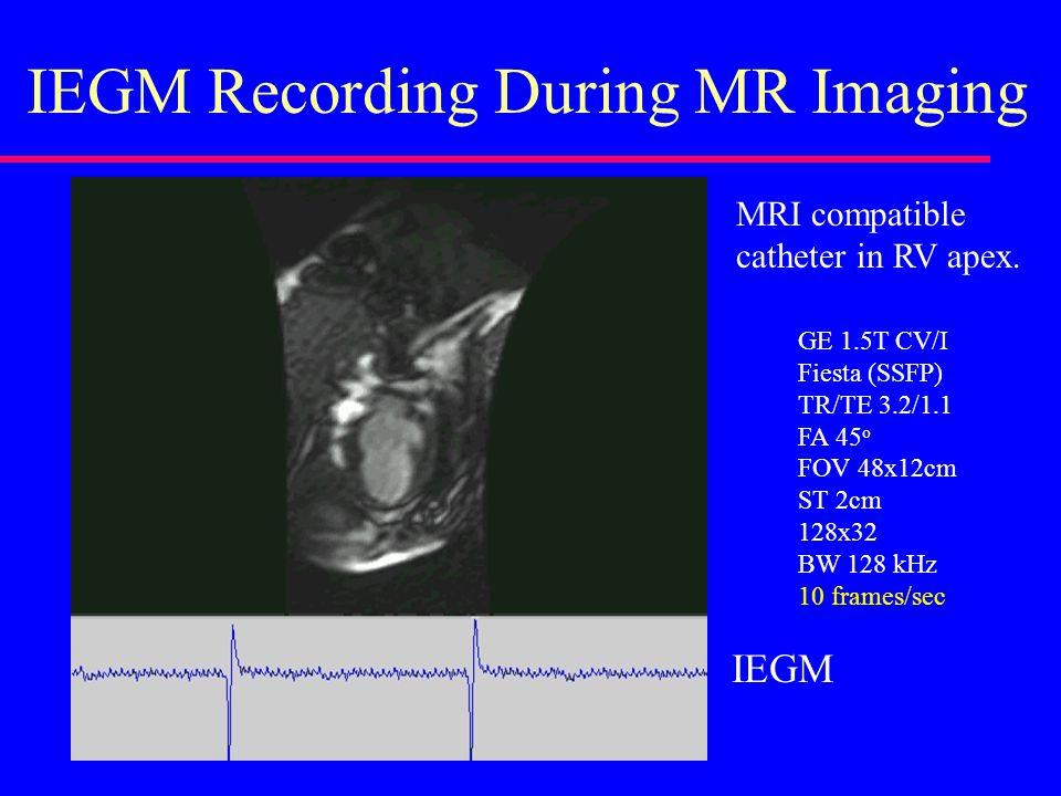 IEGM Recording During MR Imaging GE 1.5T CV/I Fiesta (SSFP) TR/TE 3.2/1.1 FA 45 o FOV 48x12cm ST 2cm 128x32 BW 128 kHz 10 frames/sec MRI compatible catheter in RV apex.