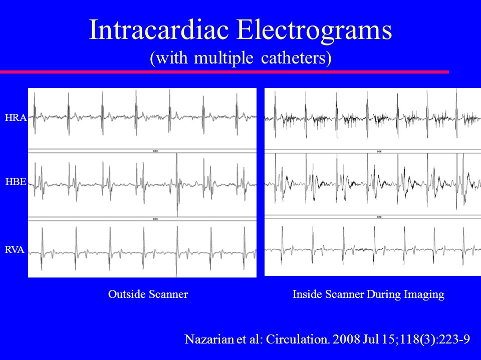 Intracardiac Electrograms (with multiple catheters) Outside Scanner Inside Scanner During Imaging HRA HBE RVA Nazarian et al: Circulation.