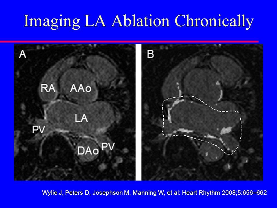 Imaging LA Ablation Chronically Wylie J, Peters D, Josephson M, Manning W, et al: Heart Rhythm 2008;5:656–662