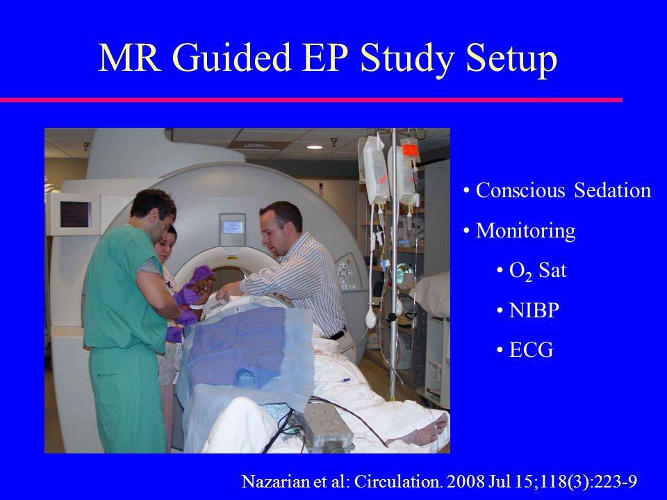 MR Guided EP Study Setup Conscious Sedation Monitoring O 2 Sat NIBP ECG Nazarian et al: Circulation.
