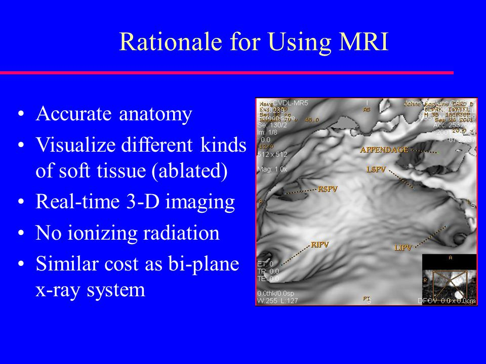 Rationale for Using MRI Accurate anatomy Visualize different kinds of soft tissue (ablated) Real-time 3-D imaging No ionizing radiation Similar cost as bi-plane x-ray system