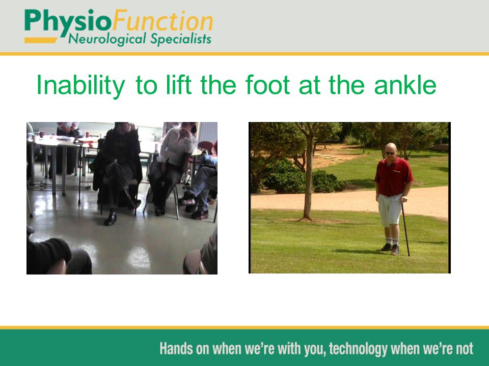 Inability to lift the foot at the ankle