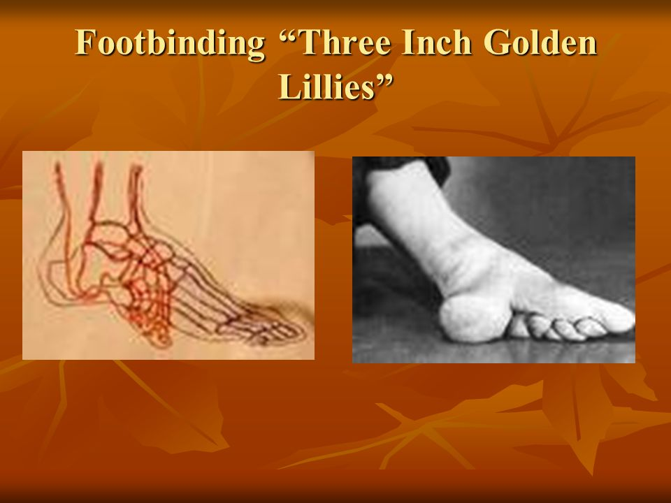 Footbinding Three Inch Golden Lillies