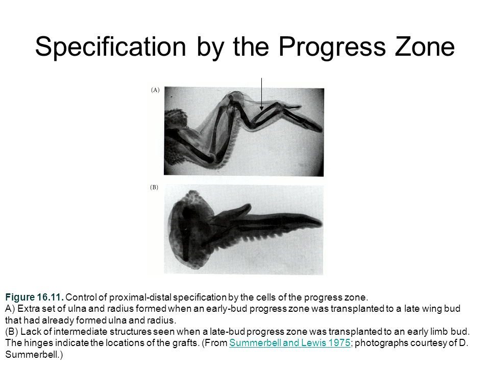 Specification by the Progress Zone Figure 16.11.