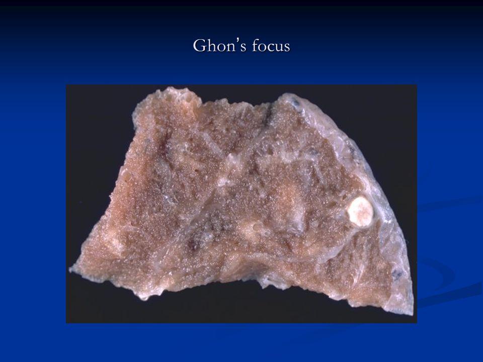 Ghon ' s focus