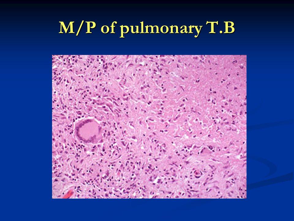 M/P of pulmonary T.B