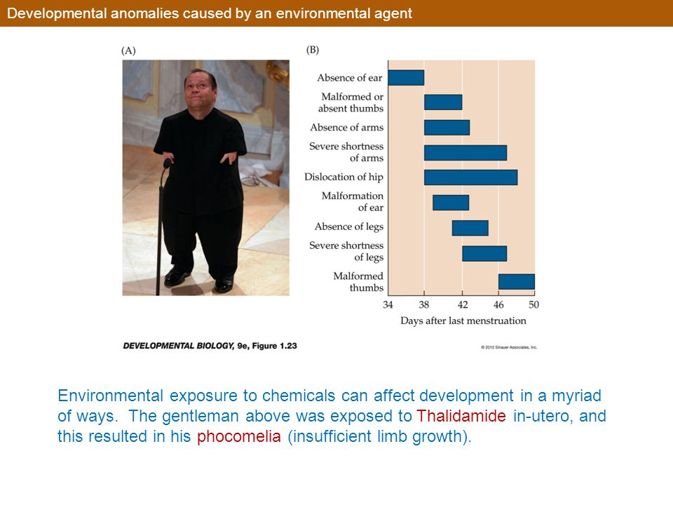 Developmental anomalies caused by an environmental agent Environmental exposure to chemicals can affect development in a myriad of ways. The gentleman