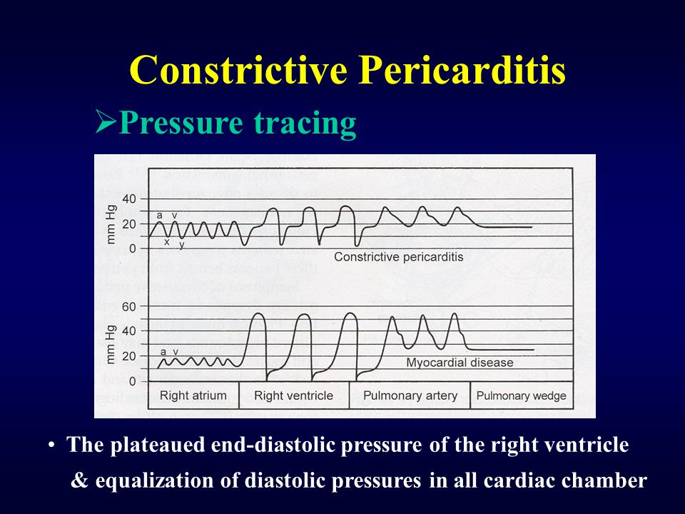 Constrictive Pericarditis The plateaued end-diastolic pressure of the right ventricle & equalization of diastolic pressures in all cardiac chamber  Pressure tracing