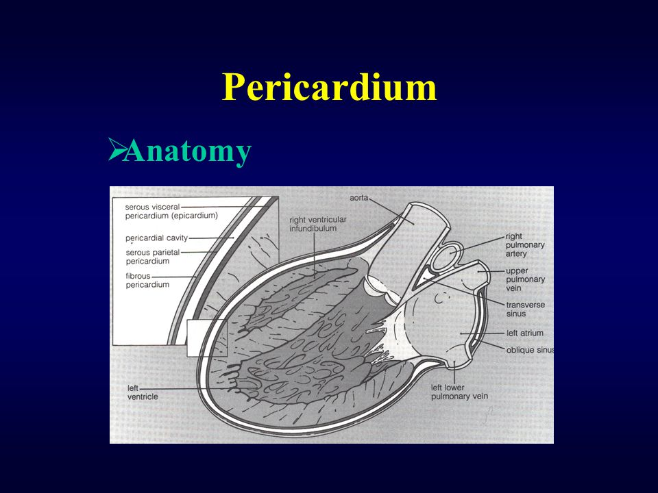 Constrictive Pericarditis The plateaued end-diastolic pressure of the right ventricle & equalization of diastolic pressures in all cardiac chamber  Pressure tracing
