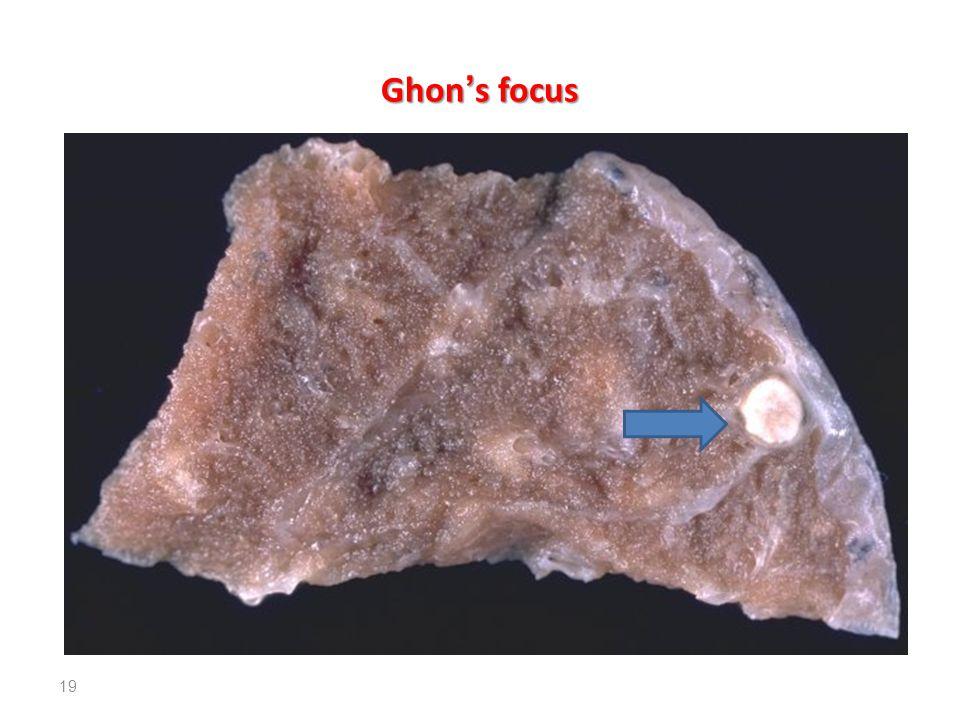 Ghon ' s focus 19