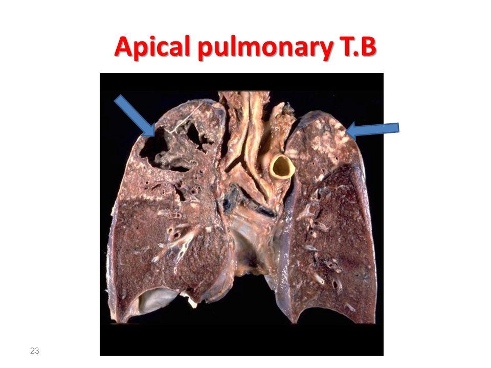 Apical pulmonary T.B 23