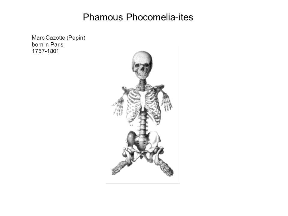 Marc Cazotte (Pepin) born in Paris 1757-1801 Phamous Phocomelia-ites