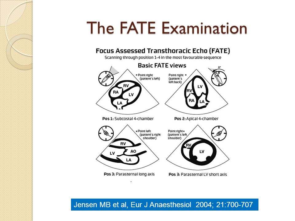 The FATE Examination Jensen MB et al, Eur J Anaesthesiol 2004; 21:700-707