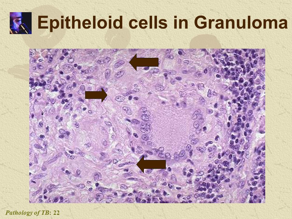 Pathology of TB: 22 Epitheloid cells in Granuloma
