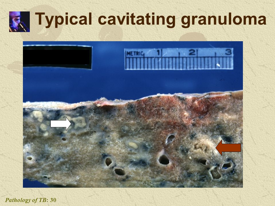 Pathology of TB: 30 Typical cavitating granuloma