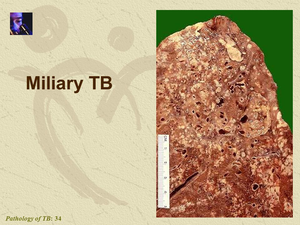 Pathology of TB: 34 Miliary TB
