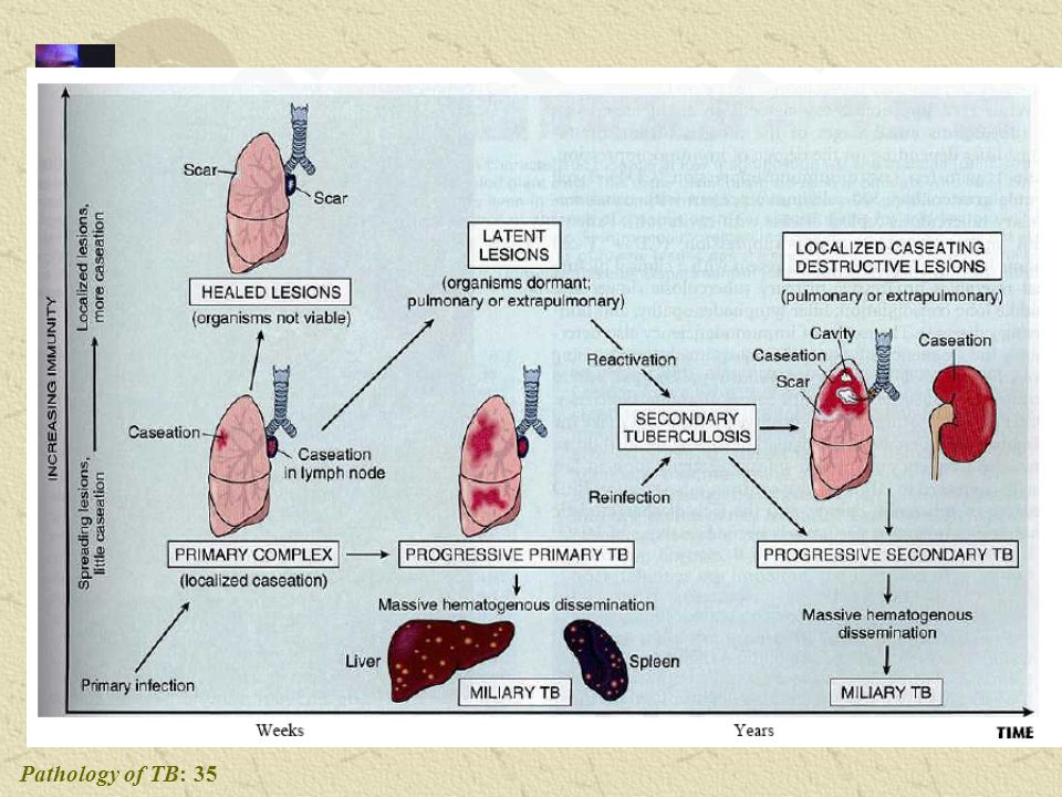 Pathology of TB: 35