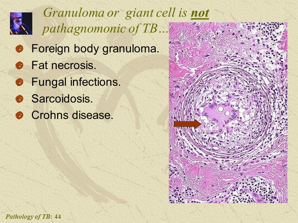 Pathology of TB: 44 Granuloma or giant cell is not pathagnomonic of TB….