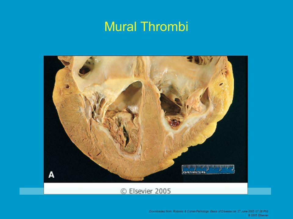 Downloaded from: Robbins & Cotran Pathologic Basis of Disease (on 27 June 2005 07:26 PM) © 2005 Elsevier Mural Thrombi