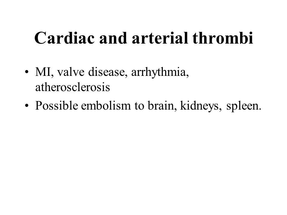 Cardiac and arterial thrombi MI, valve disease, arrhythmia, atherosclerosis Possible embolism to brain, kidneys, spleen.