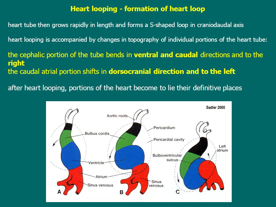 Heart looping - formation of heart loop heart tube then grows rapidly in length and forms a S-shaped loop in craniodaudal axis heart looping is accompanied by changes in topography of individual portions of the heart tube: the cephalic portion of the tube bends in ventral and caudal directions and to the right the caudal atrial portion shifts in dorsocranial direction and to the left after heart looping, portions of the heart become to lie their definitive places