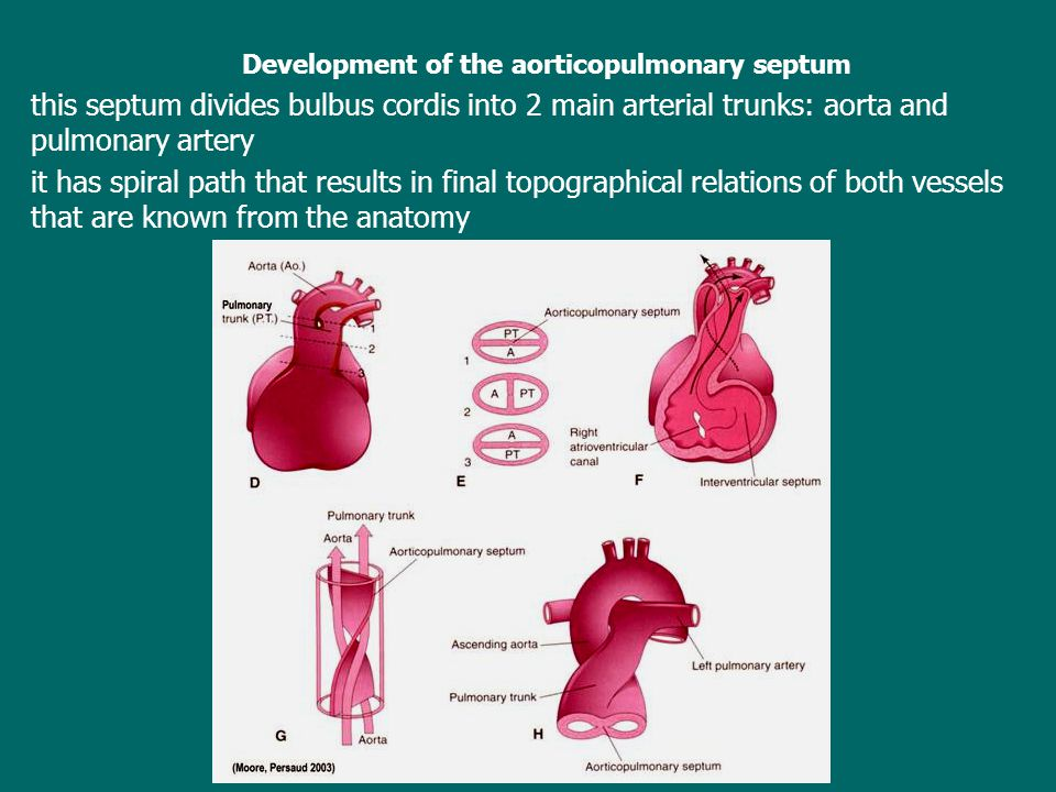 Development of the aorticopulmonary septum this septum divides bulbus cordis into 2 main arterial trunks: aorta and pulmonary artery it has spiral path that results in final topographical relations of both vessels that are known from the anatomy