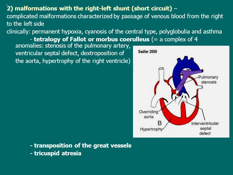 2) malformations with the right-left shunt (short circuit) – complicated malformations characterized by passage of venous blood from the right to the left side clinically: permanent hypoxia, cyanosis of the central type, polyglobulia and asthma - tetralogy of Fallot or morbus coerulleus (= a complex of 4 anomalies: stenosis of the pulmonary artery, ventricular septal defect, dextroposition of the aorta, hypertrophy of the right ventricle) - transposition of the great vessels - tricuspid atresia