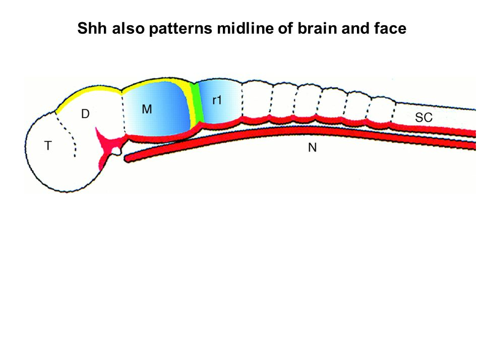 Shh also patterns midline of brain and face