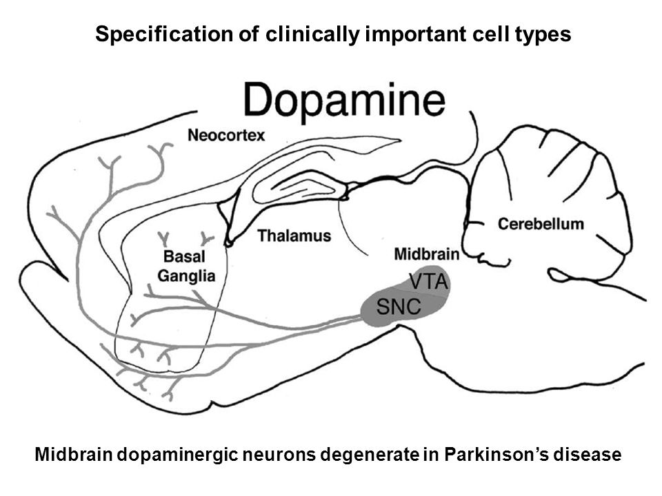 Midbrain dopaminergic neurons degenerate in Parkinson's disease Specification of clinically important cell types